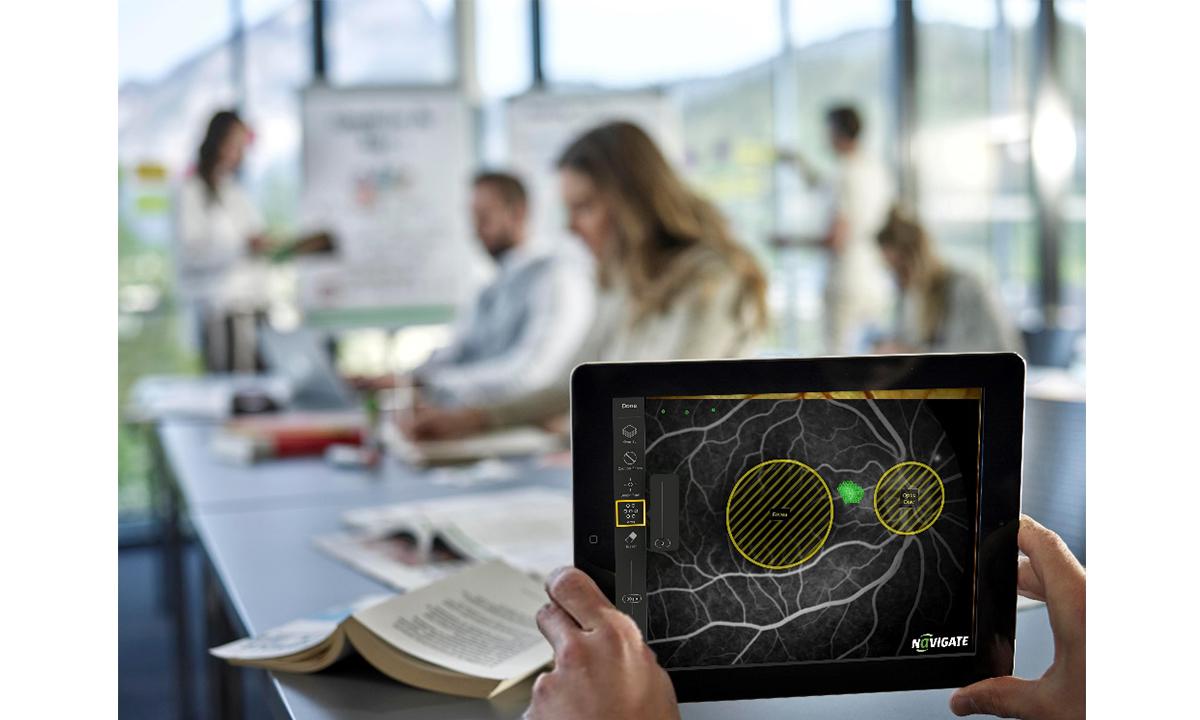 OD-OS stellt kostenlose Lern-App für die Laserbehandlung der Netzhaut vor